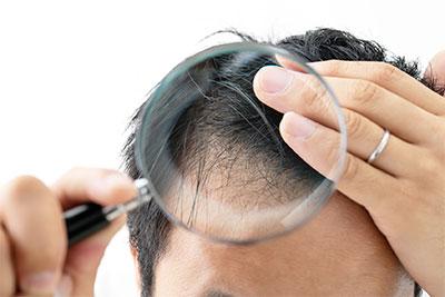 男性の薄毛・脱毛